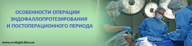 Эндофаллопротезирование полового члена при импотенци в Киеве операция