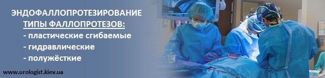 Эндофаллопротезирование полового члена в Киеве типы протезов члена