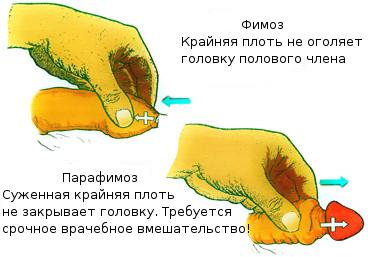 парафимоз parafimoz