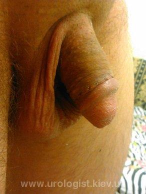 фимоз обрезание операция