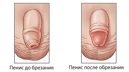 fimoz do i posle operatsii